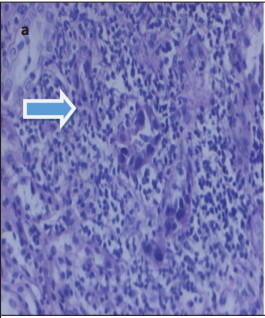 BK Virus Nephropathy in Renal Transplantation: Case Series and Review of the Literature